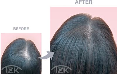 つむじ | 増毛エクステ施術例