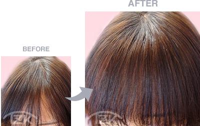 前髪 | 増毛エクステ施術例