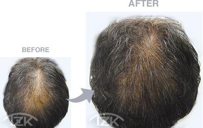 トップ | 増毛エクステ施術例