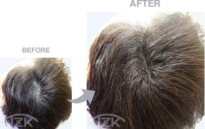 分け目 | 増毛エクステ施術例